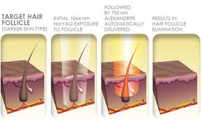laser hair removal treatment in