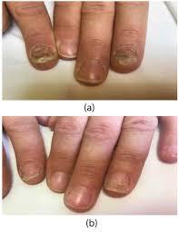 treatment of nail psoriasis