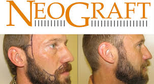 neograft beard transplant utah