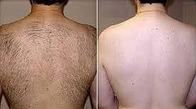 laser hair removal bloom laser clinic