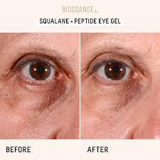 makeupalley roc eye cream saubhaya makeup