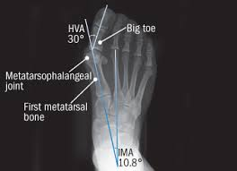what to do about bunions harvard health
