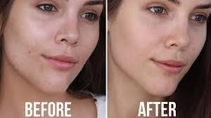 my skincare routine for oily acne e