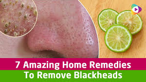 remove blackheads health tips