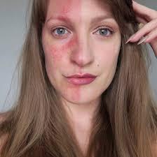 best makeup s for rosacea