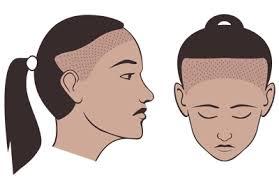 traction alopecia natural transplants