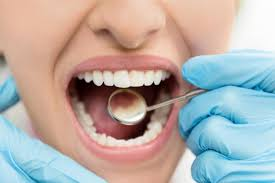 How to get rid of cavities: Home remedies & prevention