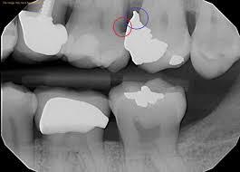 Bethlehem Town Family Dental Blog   Problem Solved!