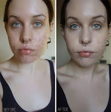 cover acne scars 2016 mugeek vidalondon