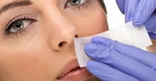 cover melasma on the upper lip