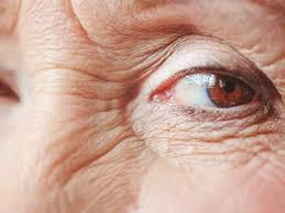 red eyes 20 causes symptoms
