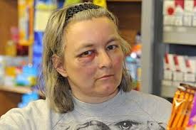 Wirral shopkeepers fear reprisals after attack by car thugs ...
