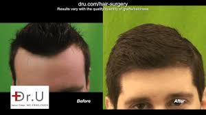 video best hair transplant clinic in
