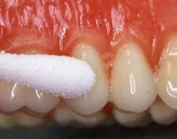 treatments for swollen gums