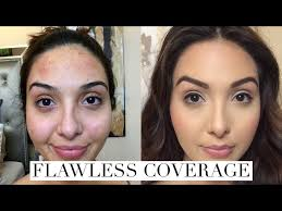 acne breakouts dark spots with makeup