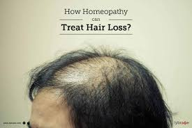 how homeopathy can treat hair loss