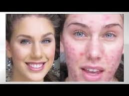 foundation routine for acne how to