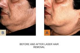 laser hair removal london with cynosure
