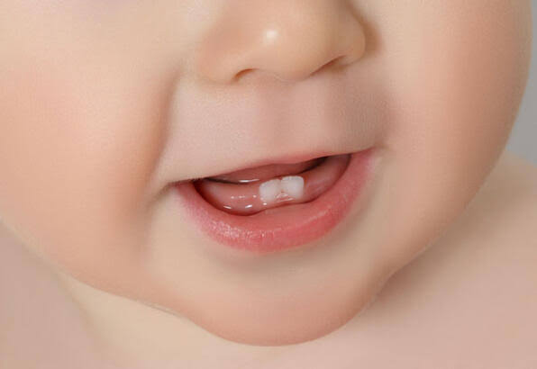 """bebek diş ile ilgili görsel sonucu"""""""