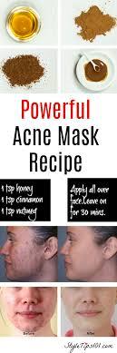 homemade natural acne mask