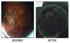 prp hair loss treatment ह यर ल स