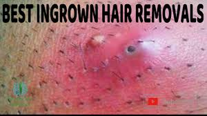 best ingrown hair removals you