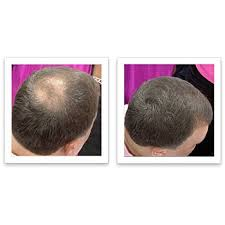 white color caboki hair loss concealer