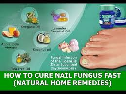 working natural cures for nail fungus