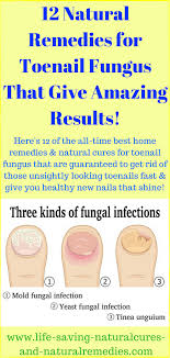 12 home remes for toenail fungus