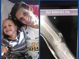 Fundraiser by Isaac Sanchez : Un Tutor cilíndrico para la pierna de Isaí