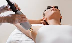 laser hair removal auckland nz pcmc