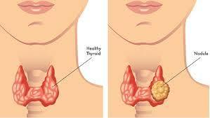 """Image result for Características clínicas y citológicas en personas con enfermedad nodular tiroidea"""""""