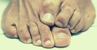 essential oils for toenail fungus top
