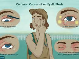 mon causes of eyelid rashes