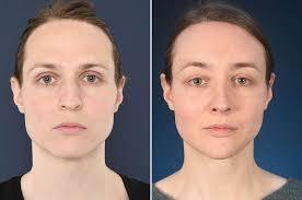 chin surgery feminizing the chin