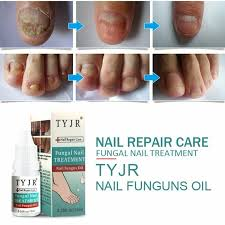cine for nail fungus news and health