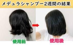 ボード「髪の悩みまとめ」のピン