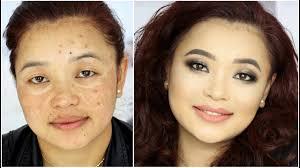 hyper pigmentation