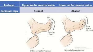 difference between upper motor neuron