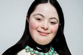 Ellie Goldstein è la prima modella di Gucci con sindrome di Down - Moda -  D.it Repubblica