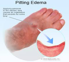 swollen ankles and feet treatment