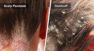 scalp psoriasis vs dandruff how to