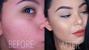 how to cover up acne scars you