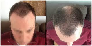 after a hair transplantation