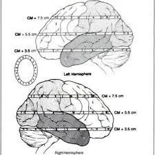 Lelland TOLBERT | University of Alabama at Birmingham, AL | UAB |  Department of Psychiatry and Behavioral Neurobiology