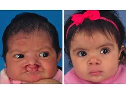 bilateral cleft lip and palate front