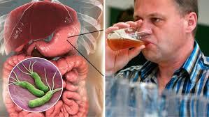 Salud | ¿Cómo se transmite la bacteria que provoca cáncer de ...