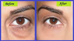 what causes dark bags under my eyes
