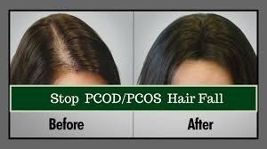 how to stop hair fall naturally how