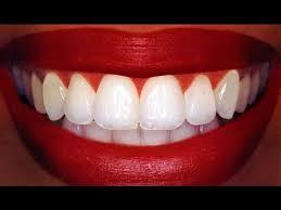 homemade teeth whitening you